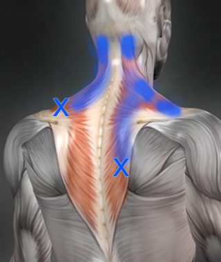 Trigger point pain referal